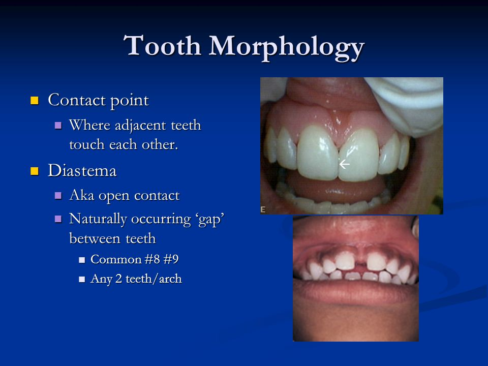 Tooth Morphology Contact point Diastema