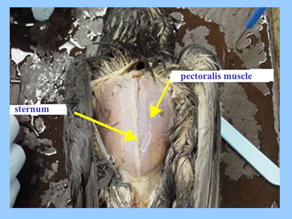 pectoralis muscle sternum sdsd dfds