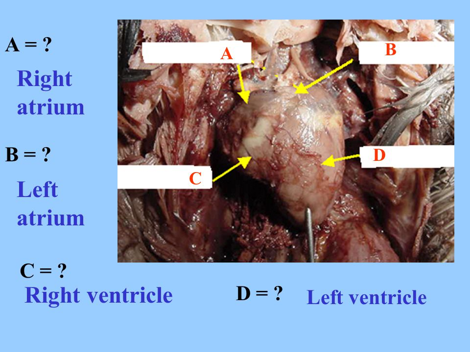 Right atrium Left atrium Right ventricle A = B = C = D =