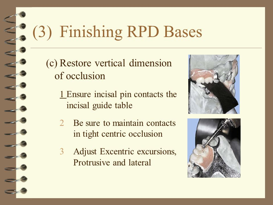 (3) Finishing RPD Bases (c) Restore vertical dimension of occlusion