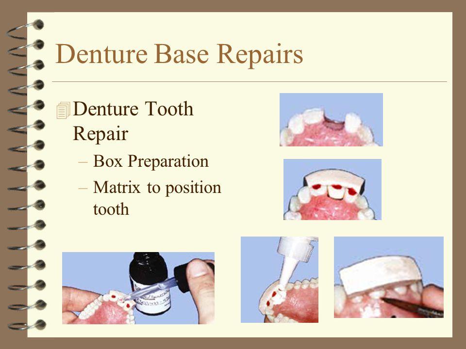 Denture Base Repairs Denture Tooth Repair Box Preparation