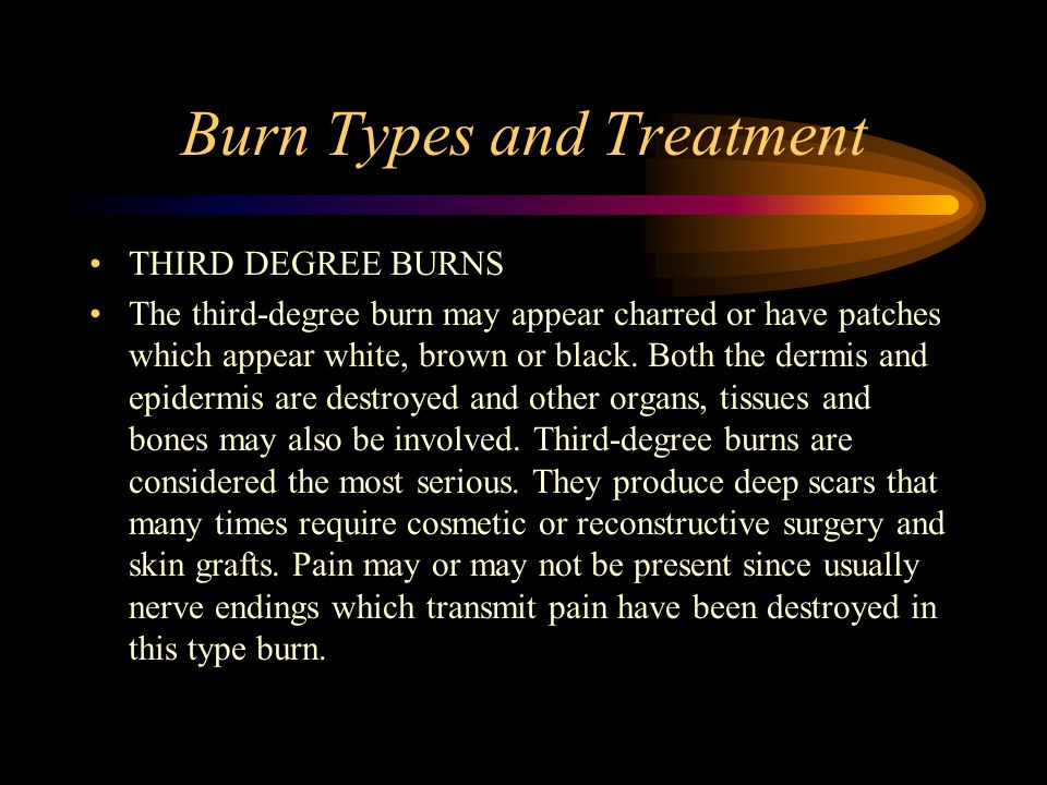 Burn Types and Treatment