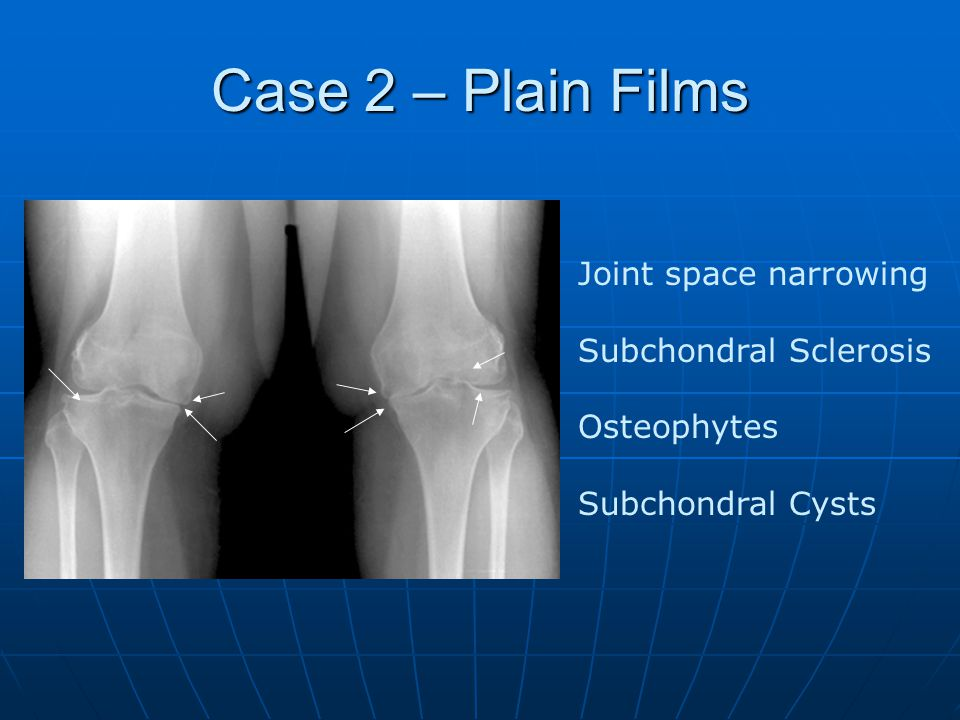 Case 2 – Plain Films Joint space narrowing Subchondral Sclerosis