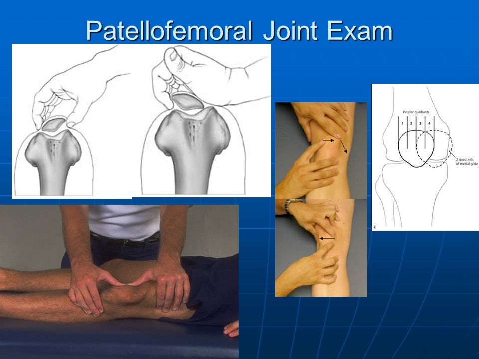 Patellofemoral Joint Exam