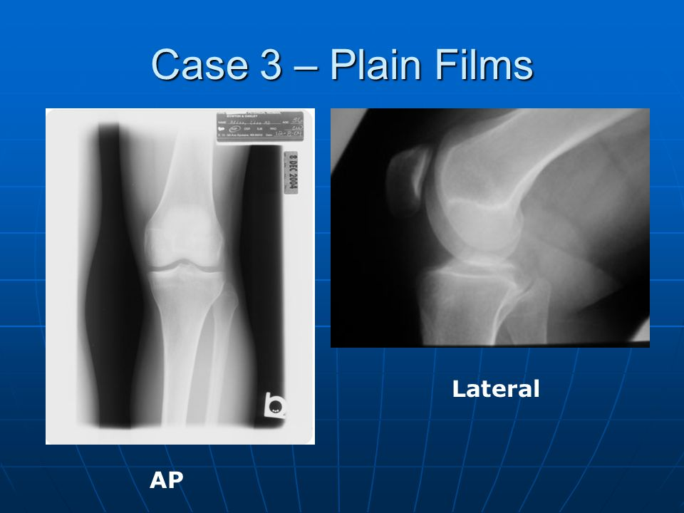 Case 3 – Plain Films Lateral AP