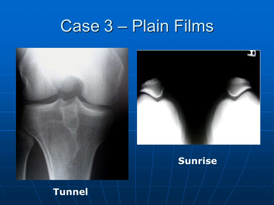 Case 3 – Plain Films Sunrise Tunnel
