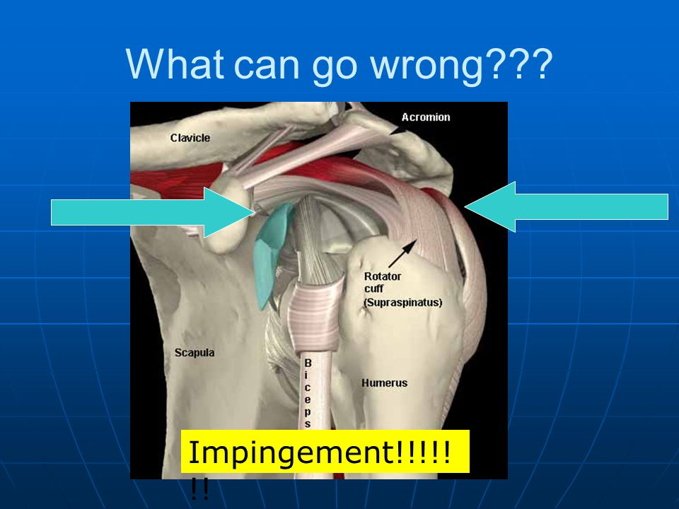 What can go wrong Impingement!!!!!!!