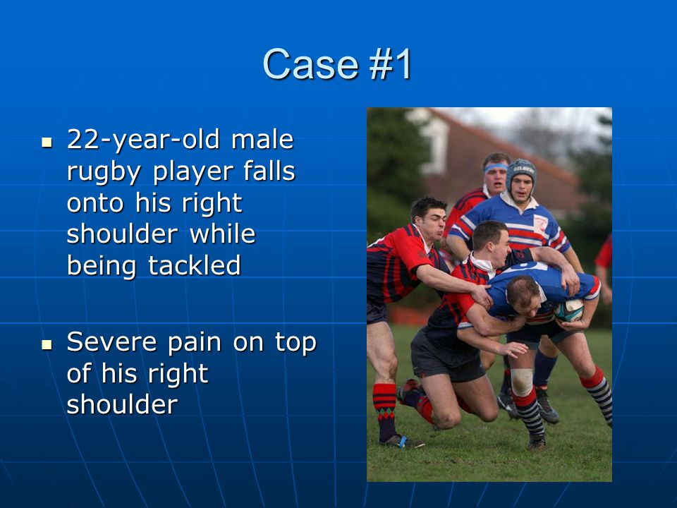 Case #1 22-year-old male rugby player falls onto his right shoulder while being tackled.