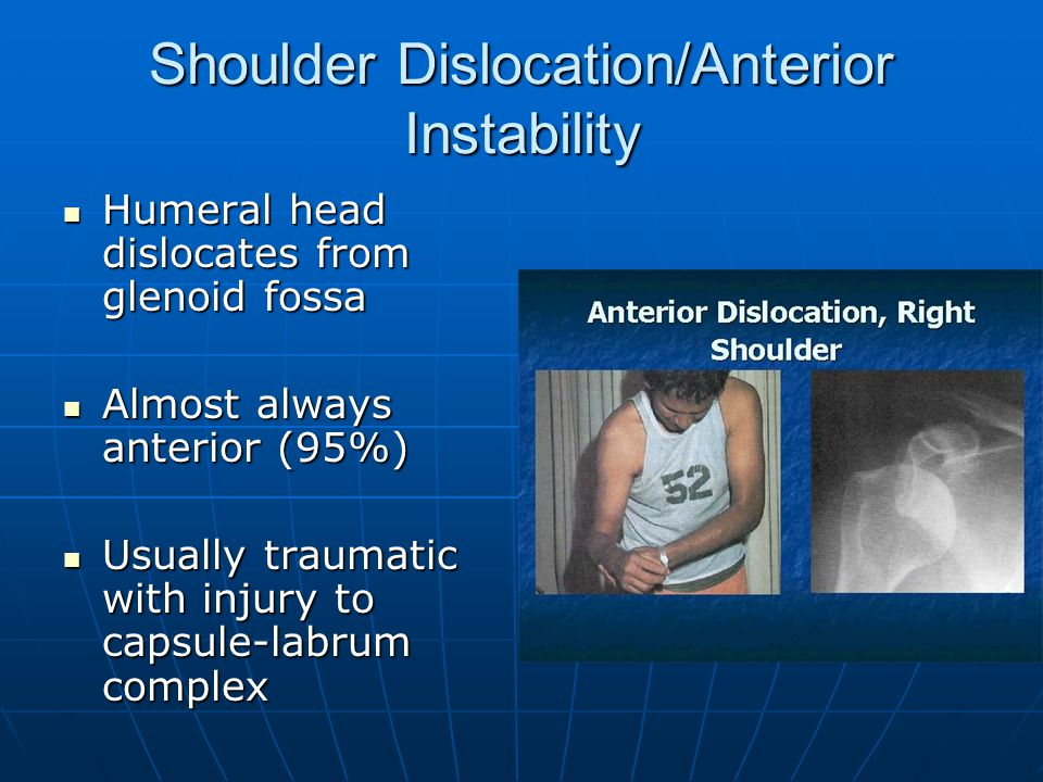 Shoulder Dislocation/Anterior Instability