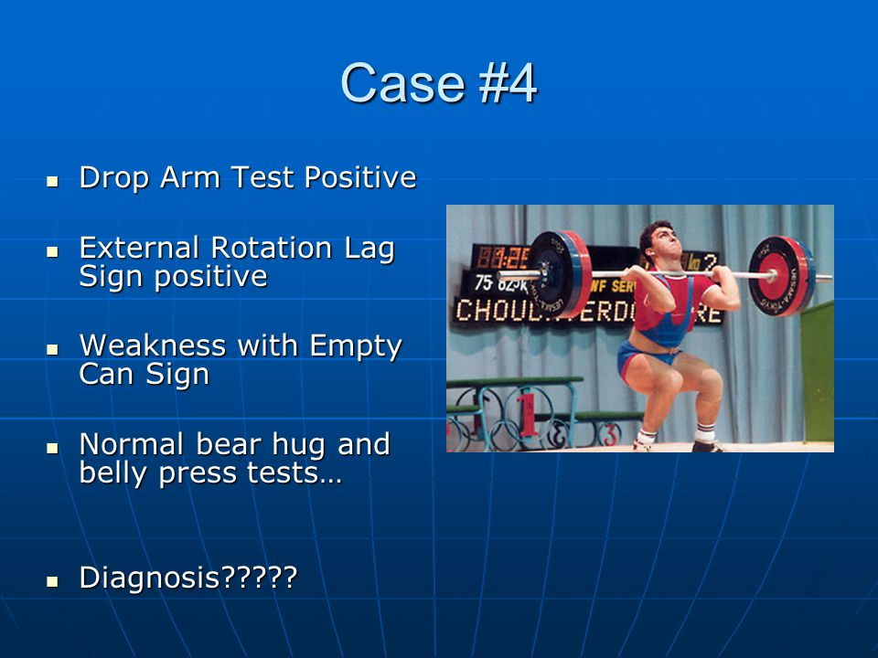 Case #4 Drop Arm Test Positive External Rotation Lag Sign positive