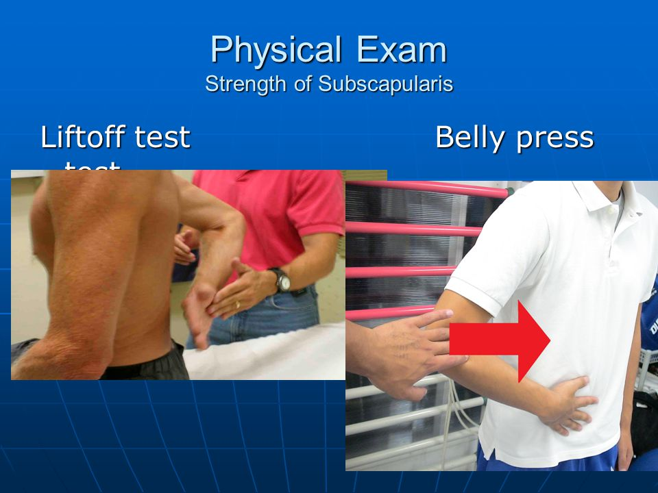 Physical Exam Strength of Subscapularis