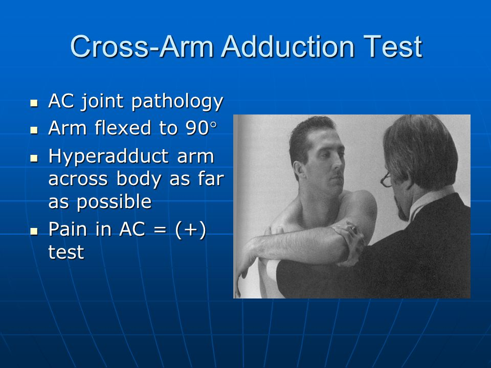 Cross-Arm Adduction Test