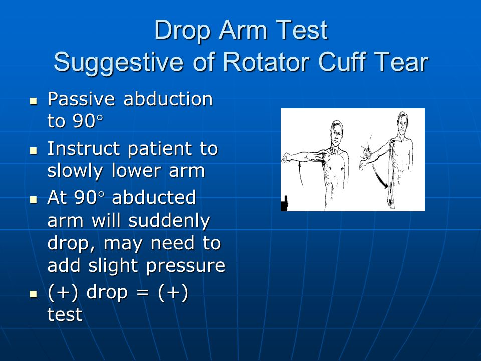 Drop Arm Test Suggestive of Rotator Cuff Tear