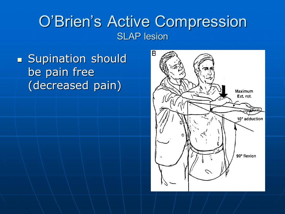 O'Brien's Active Compression SLAP lesion