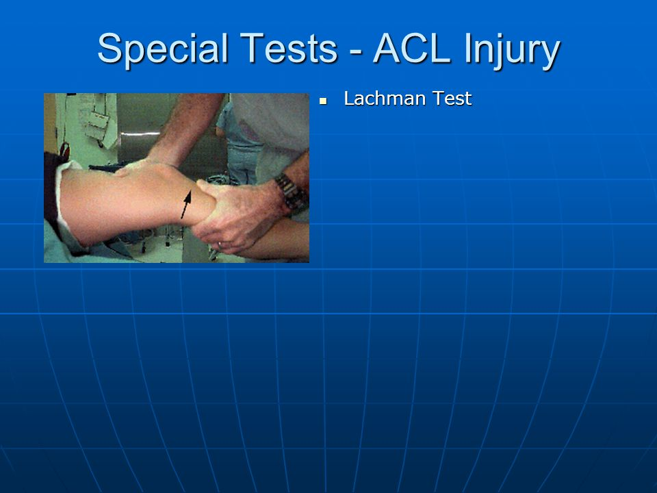 Special Tests - ACL Injury