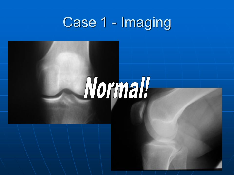 Case 1 - Imaging Normal!