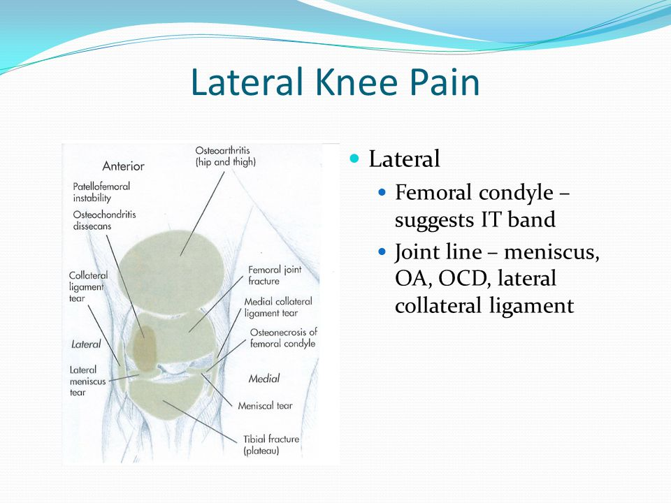 Lateral Knee Pain Lateral Femoral condyle – suggests IT band