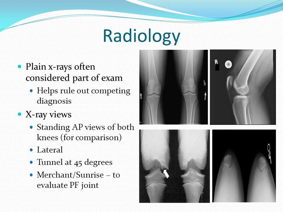 Radiology Plain x-rays often considered part of exam X-ray views