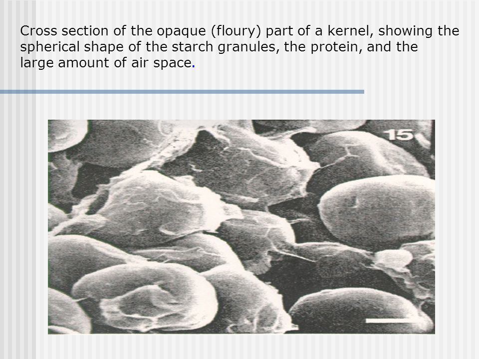 Cross section of the opaque (floury) part of a kernel, showing the