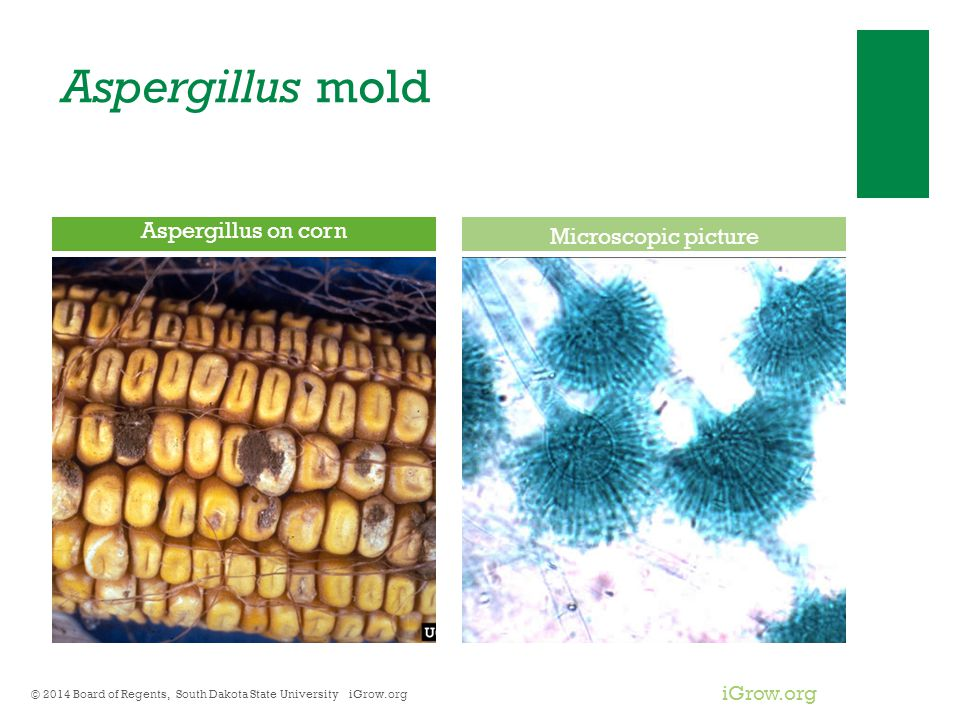 Aspergillus mold Aspergillus on corn Microscopic picture