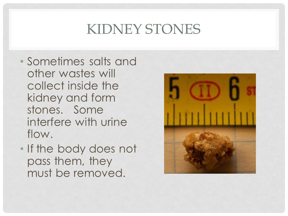 Kidney Stones Sometimes salts and other wastes will collect inside the kidney and form stones. Some interfere with urine flow.