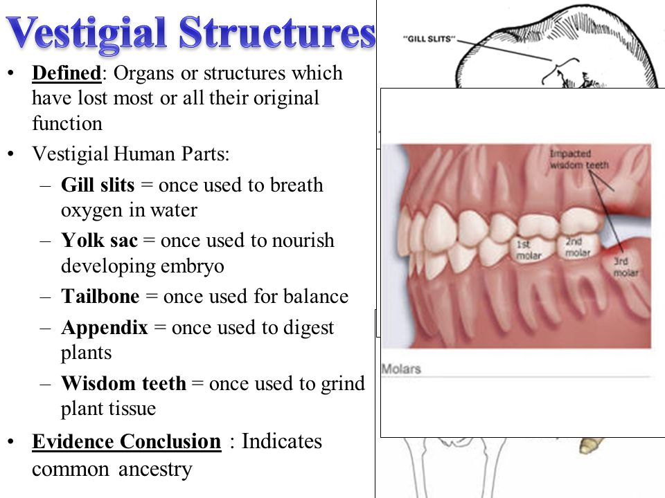 Vestigial Structures Defined: Organs or structures which have lost most or all their original function.
