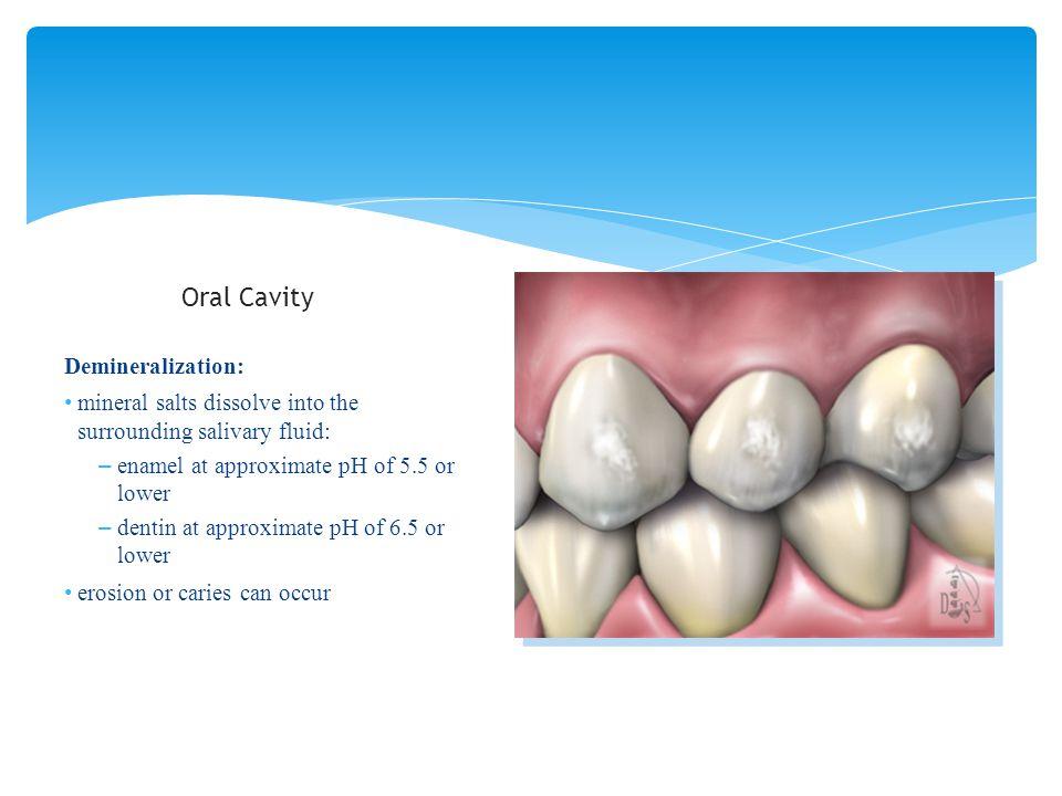 Oral Cavity Demineralization: