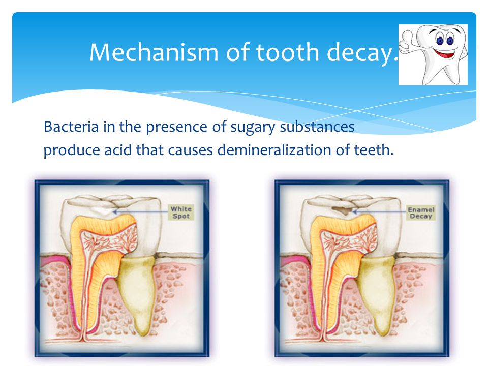 Mechanism of tooth decay.