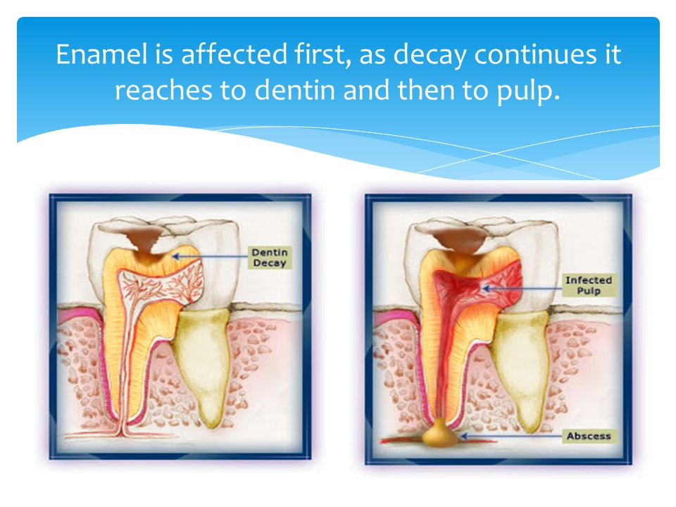 Enamel is affected first, as decay continues it reaches to dentin and then to pulp.