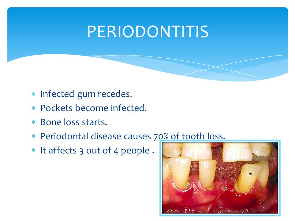 PERIODONTITIS Infected gum recedes. Pockets become infected.