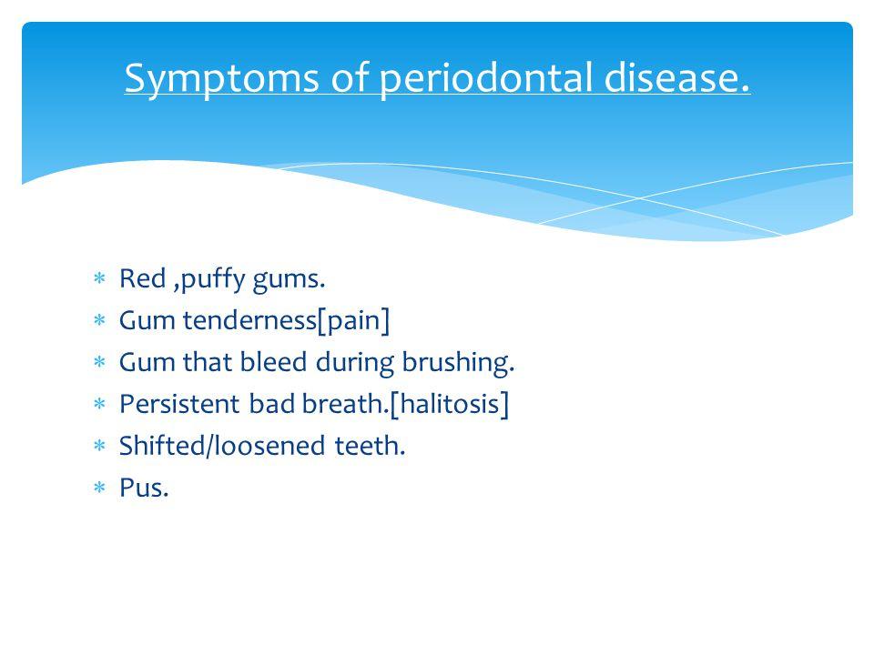 Symptoms of periodontal disease.