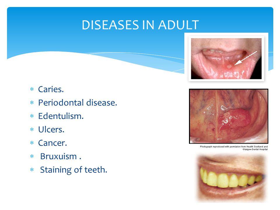 DISEASES IN ADULT Caries. Periodontal disease. Edentulism. Ulcers.