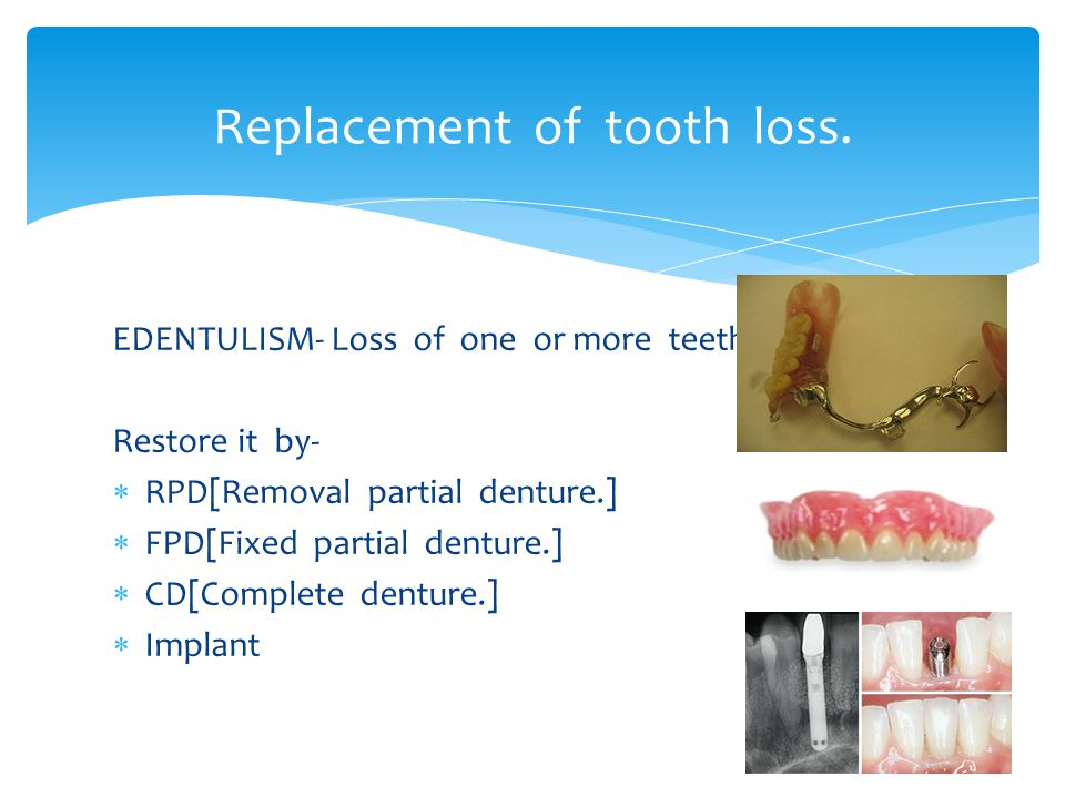 Replacement of tooth loss.
