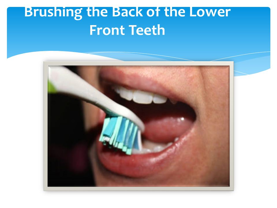 Brushing the Back of the Lower Front Teeth