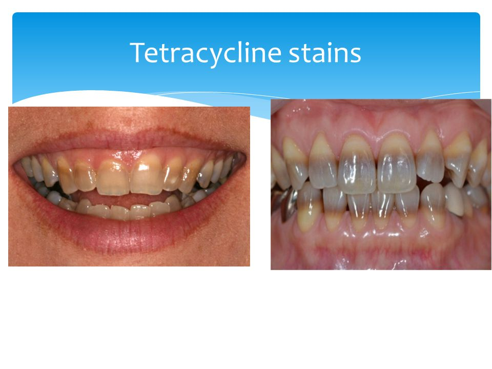 Tetracycline stains