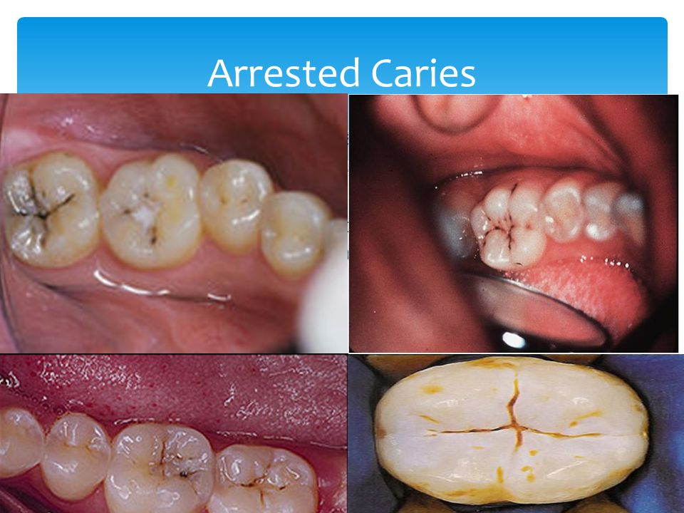 Arrested Caries This is a carious lesion that has become inactive and has stopped progressing; they may exhibit changes in color and consistency.