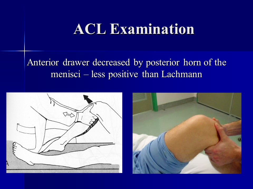 ACL Examination Anterior drawer decreased by posterior horn of the menisci – less positive than Lachmann.
