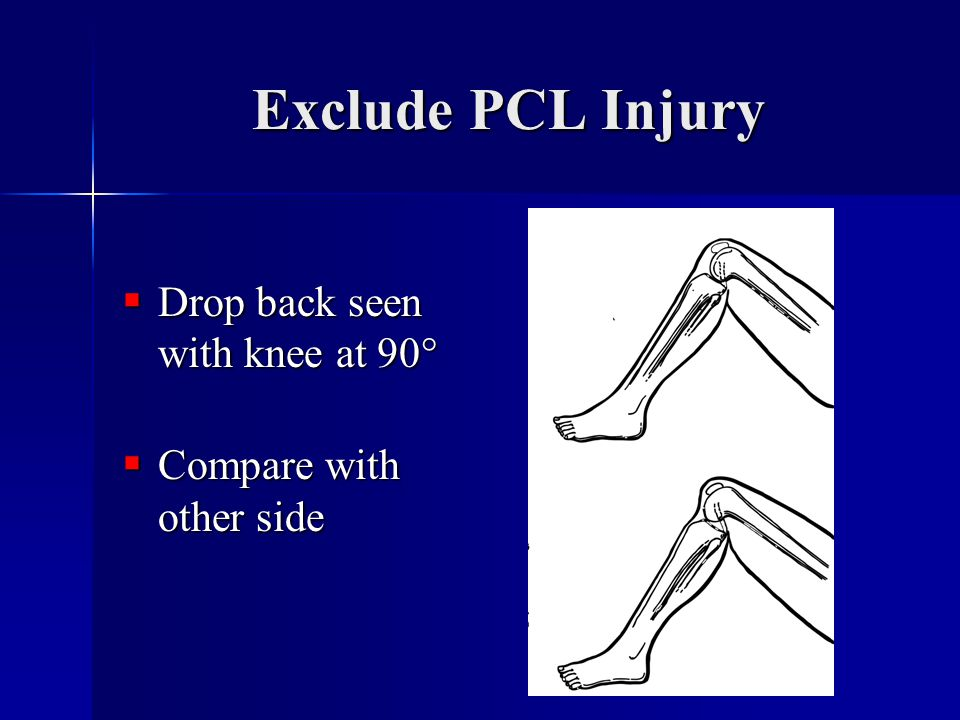 Exclude PCL Injury Drop back seen with knee at 90°