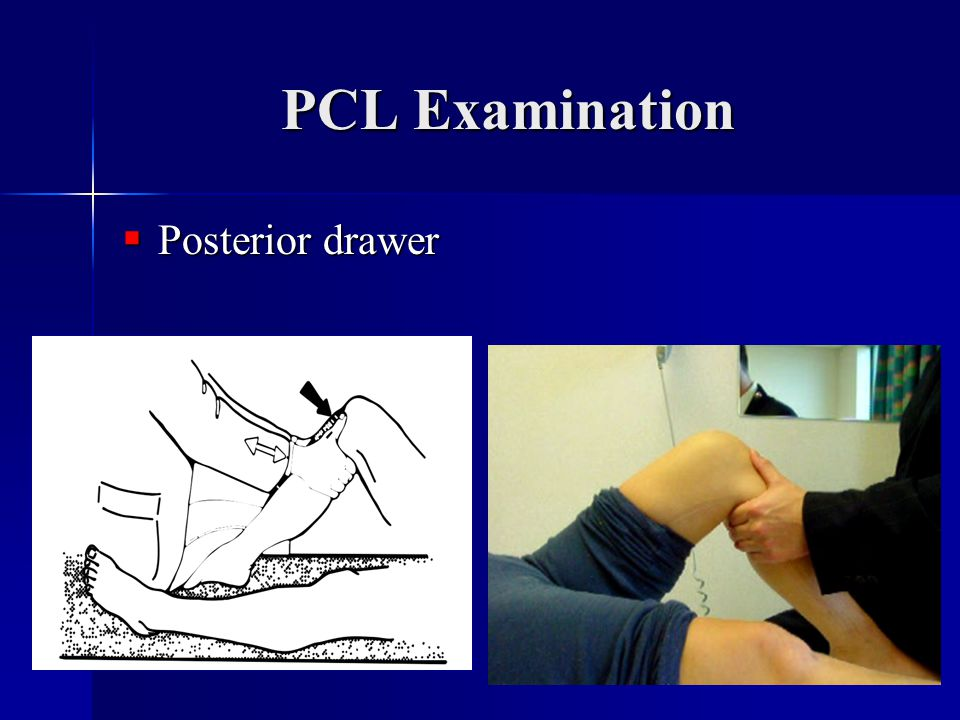 PCL Examination Posterior drawer