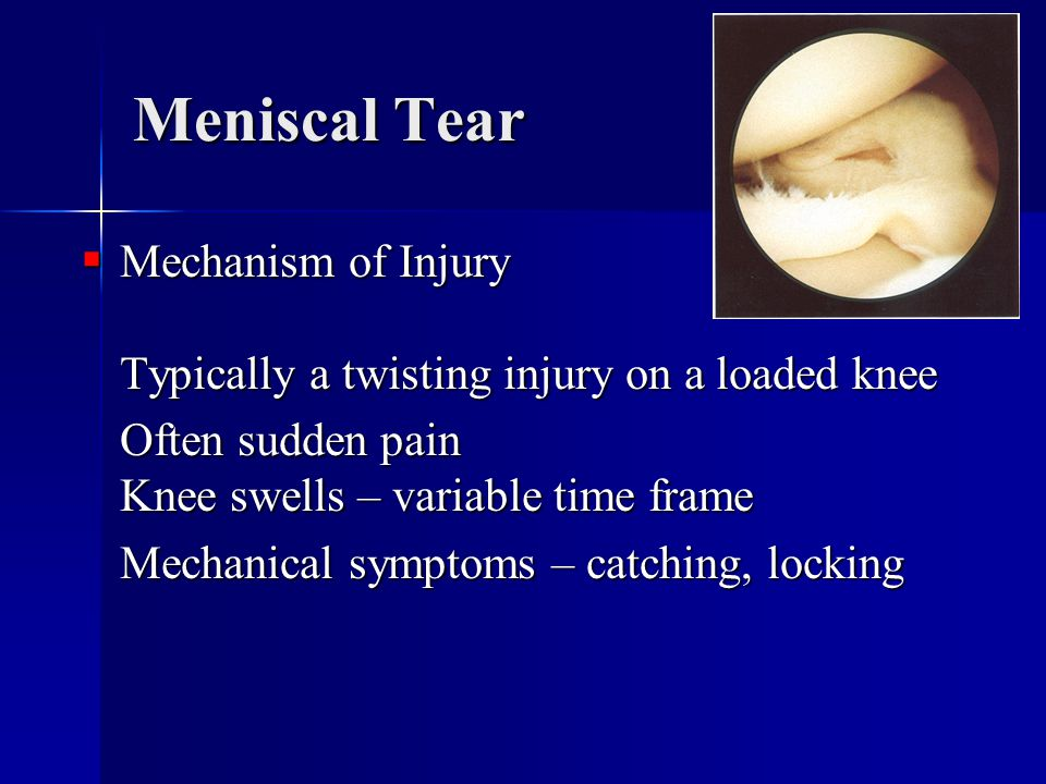 Meniscal Tear Mechanism of Injury Typically a twisting injury on a loaded knee. Often sudden pain Knee swells – variable time frame.