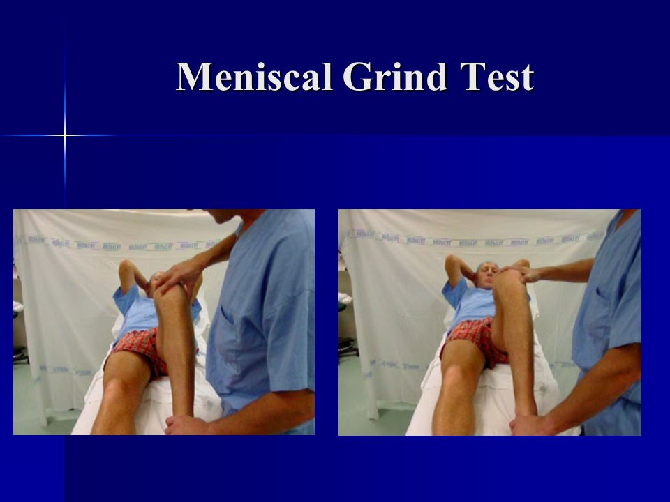 Meniscal Grind Test