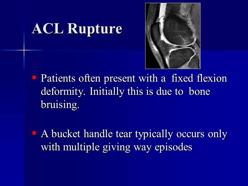 ACL Rupture Patients often present with a fixed flexion deformity. Initially this is due to bone bruising.