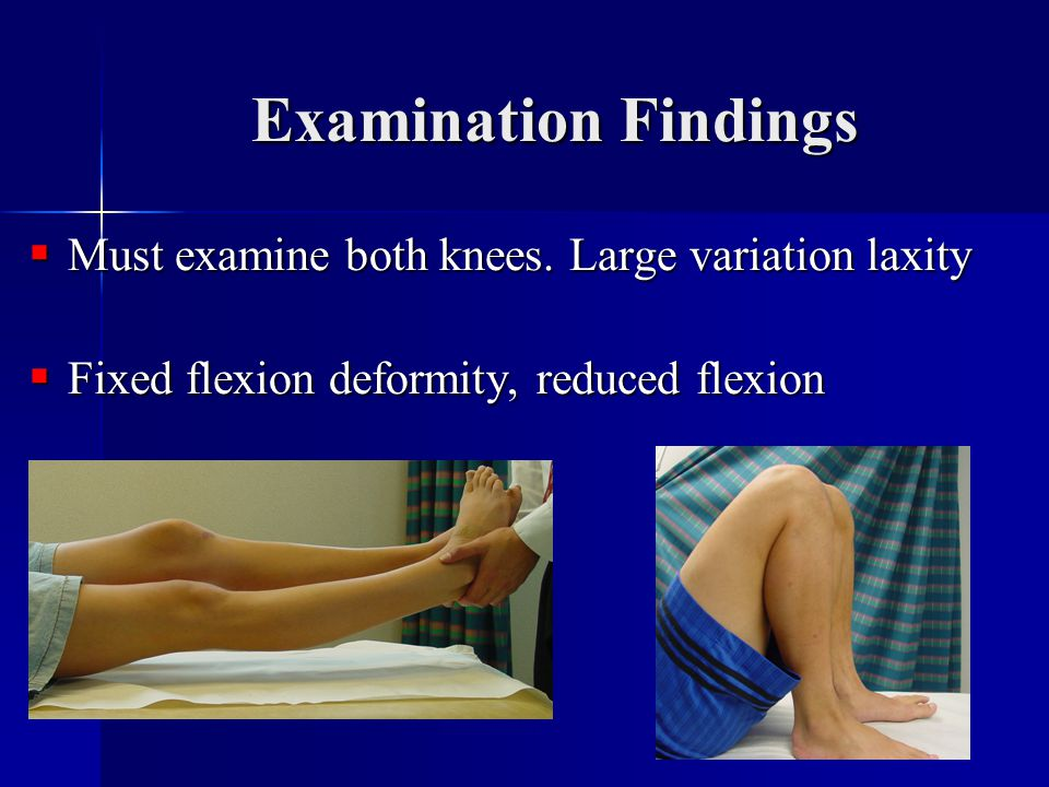 Examination Findings Must examine both knees. Large variation laxity