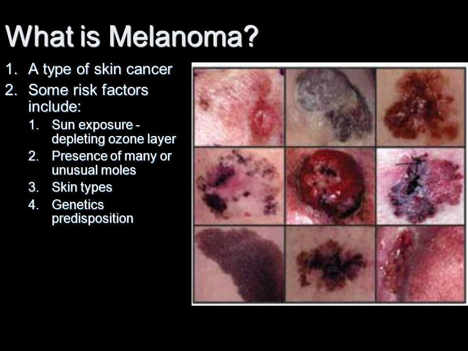 What is Melanoma A type of skin cancer Some risk factors include: