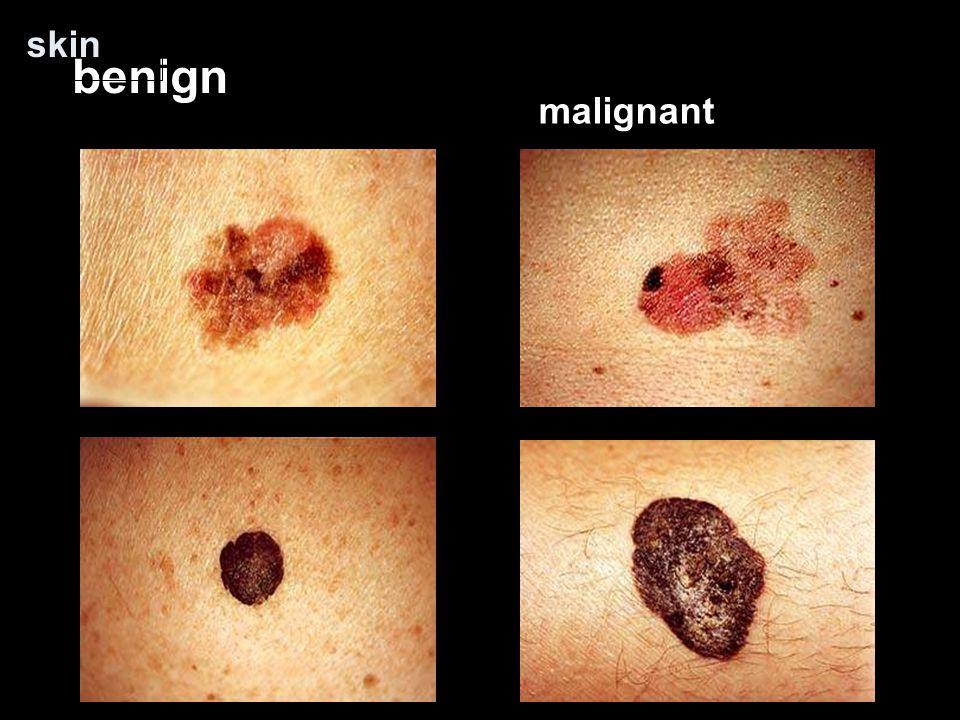 skin benign malignant