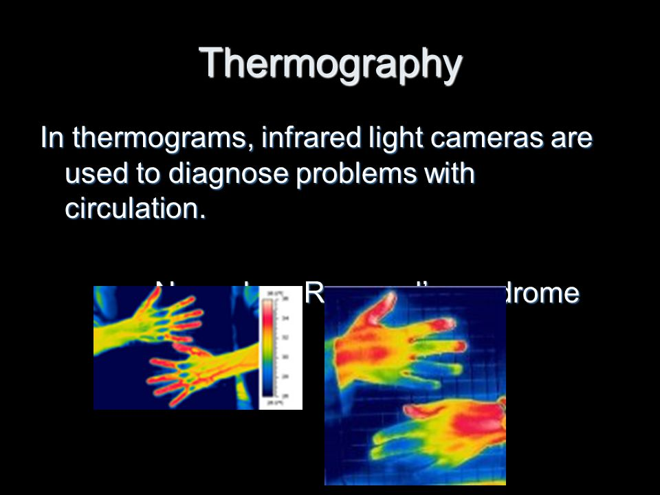 Thermography In thermograms, infrared light cameras are used to diagnose problems with circulation.