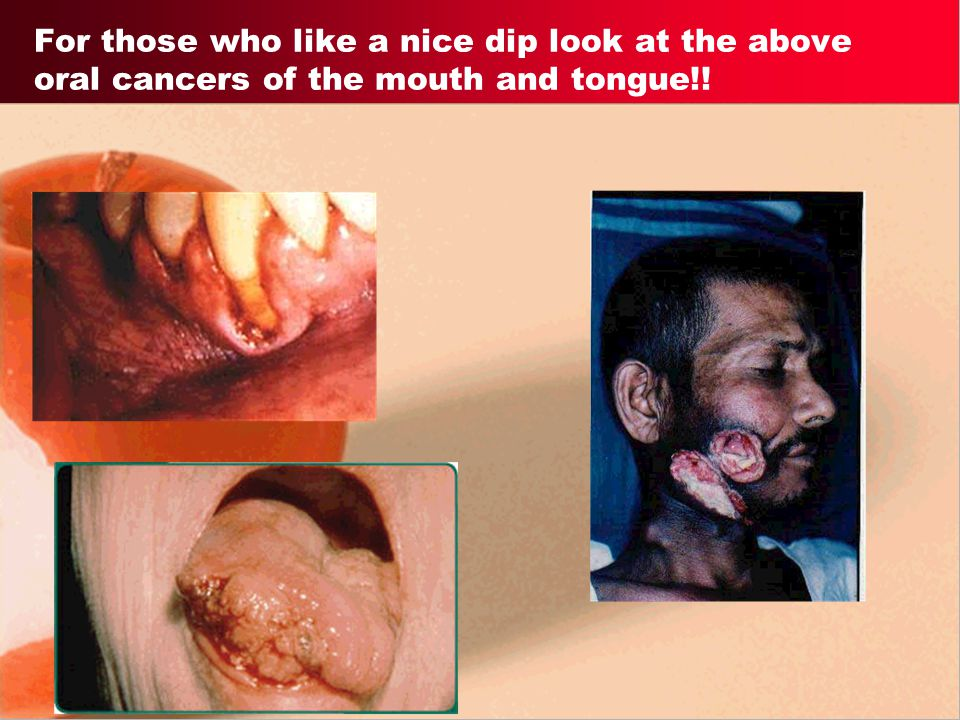 For those who like a nice dip look at the above oral cancers of the mouth and tongue!!