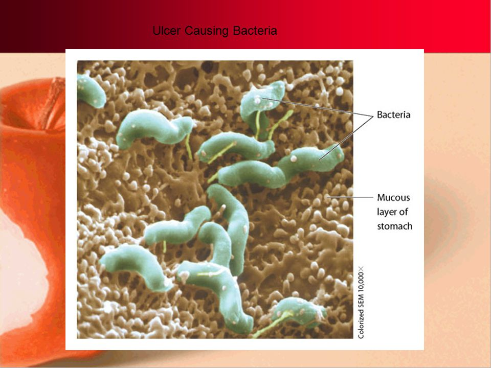 Ulcer Causing Bacteria