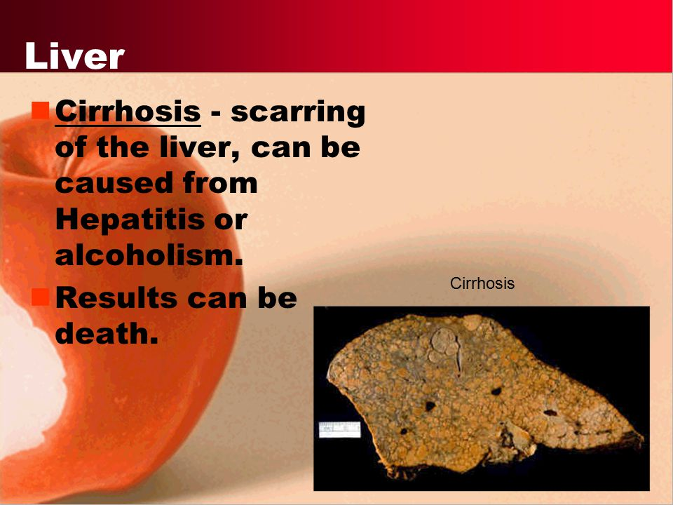 Liver Cirrhosis - scarring of the liver, can be caused from Hepatitis or alcoholism. Results can be death.