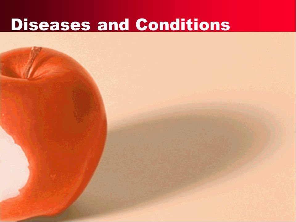 Diseases and Conditions